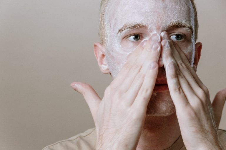 We Need to Talk About Adult Acne
