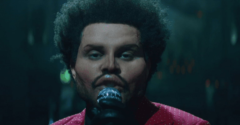 The Weeknd Reveals Botoxed Face in 'Save Your Tears' Music Video
